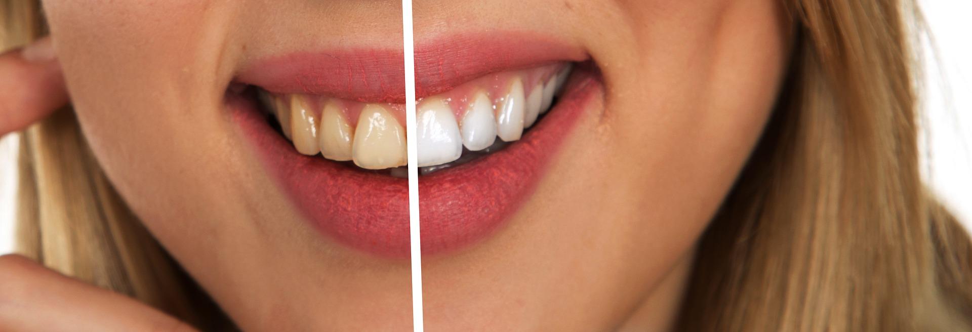 השתלות שיניים בפתח תקווה