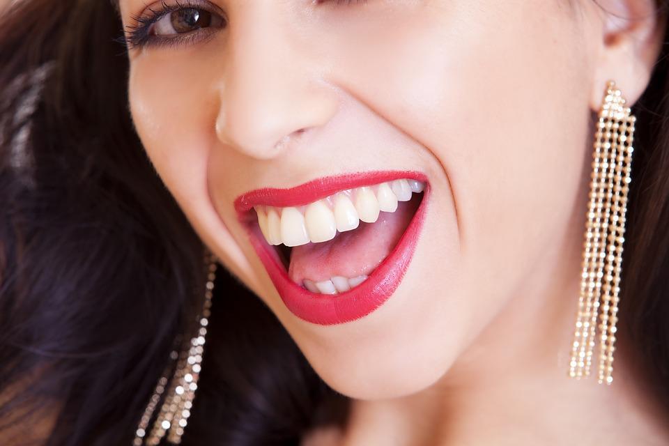 ציפוי שיניים למינייט או לומינירס